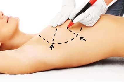 ביצוע ניתוח חוזר של הגדלת חזה
