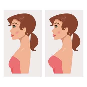 הגדלת חזה לפני ואחרי - אתר השוואת מחירים