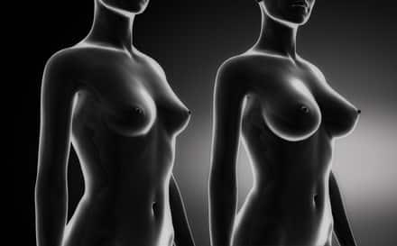 לפני ואחרי - ניתוחי הגדלת חזה