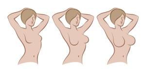 breast4u - הפורטל הישראלי להגדלת חזה