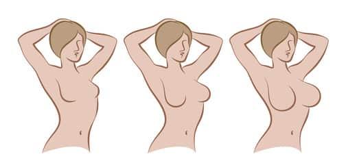 ניתוחים להגדלות חזה ללא הרמה