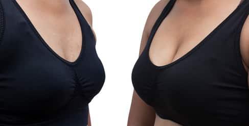 הגדלת חזה לפני ואחרי